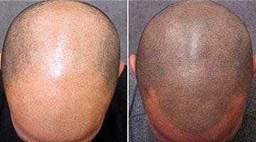 Perte de cheveux : bonne idée de tatouage